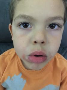 AVANT : Mini et ses rougeurs au visage